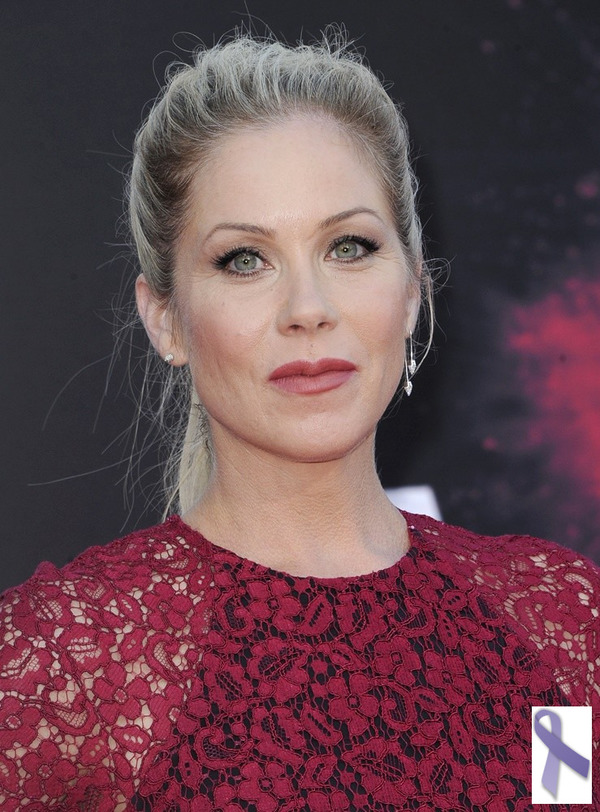 Christina Applegate and other stars, who survived cancer