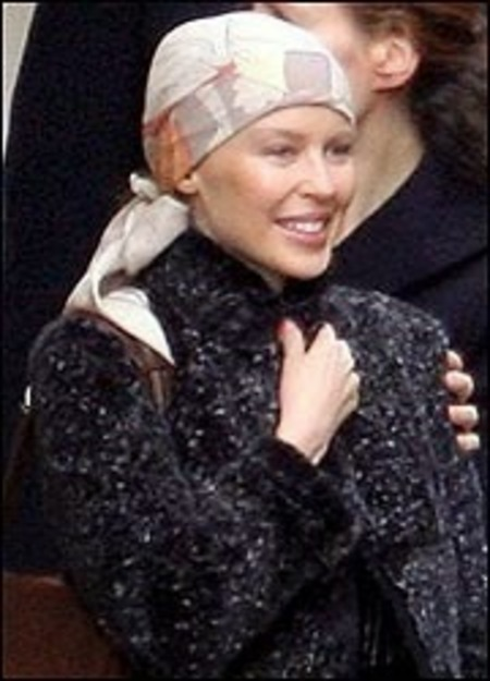 Kylie Minogue lost hair after cancer