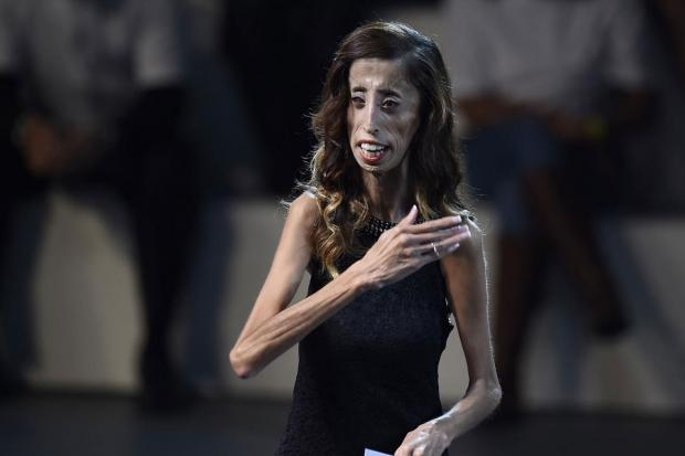 Lizzie Velásques weighs about 60lbs (27kg)