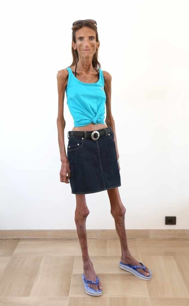 Who Is The Skinniest Person In The World Its A Real Shock-5682